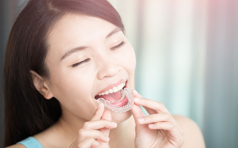 Invisalign in Washington DC