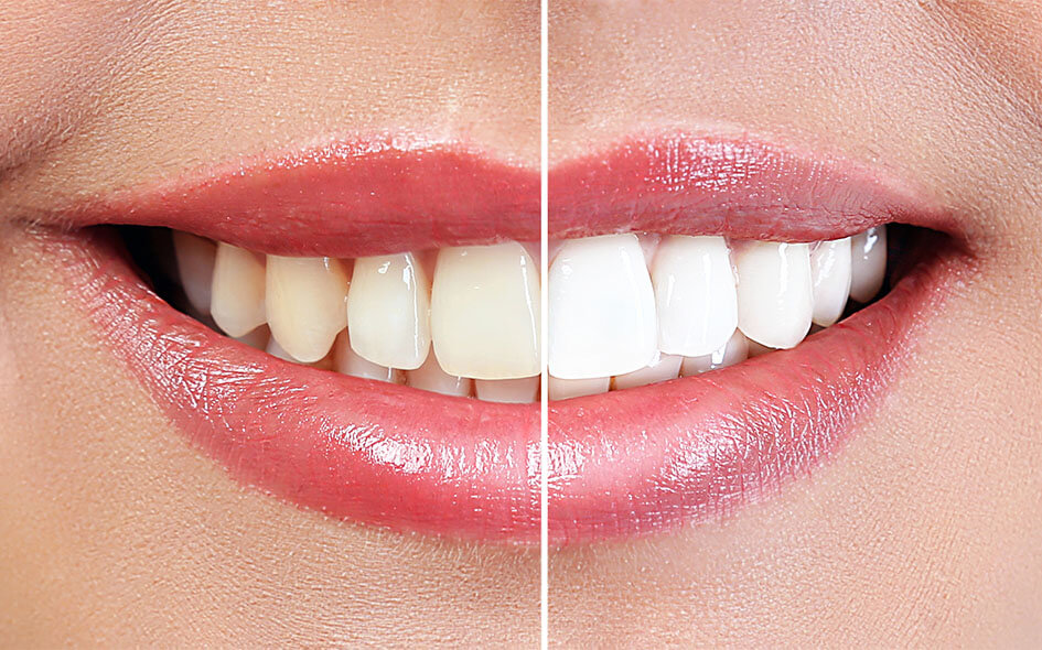 Professional Teeth Whitening in Washington DC