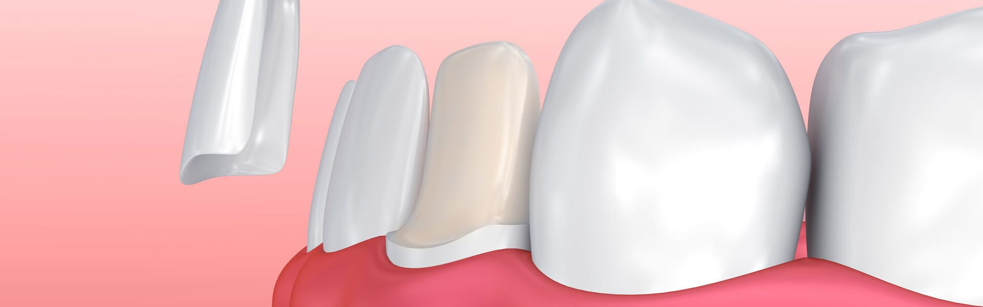 Dental Conditions Treated with Veneers